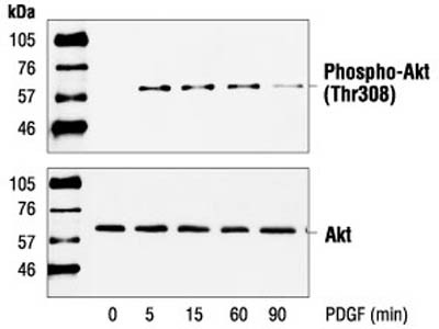 Phospho-Akt (Thr 308) Antibody from Cell Signaling