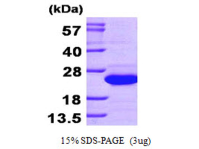Diamine N-acetyltransferase 1, 1-171aa, Human, His-tag, Recombinant, E Coli