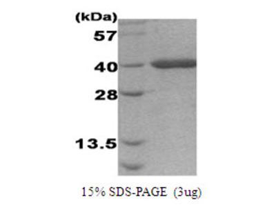 Activator of Hsp90 ATPase-1 (AHA1, 19-337), Human, Recombinant, E Coli