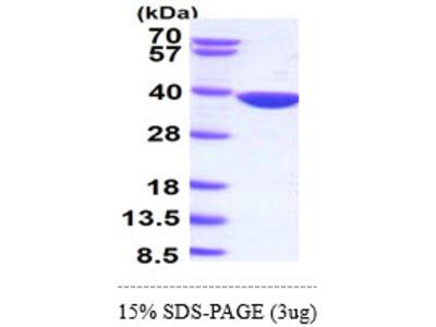 AKR1B10, 1-316aa, Human, Recombinant, E Coli