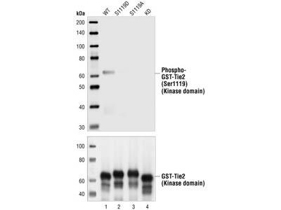 Phospho-Tie2 (Ser1119) Antibody