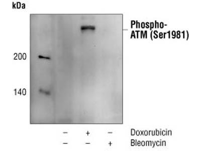 Phospho-ATM (Ser1981) (10H11.E12) Mouse mAb