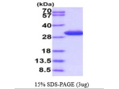 Sepiapterin reductase, 1-261aa, Human, His-tag, Recombinant, E Coli