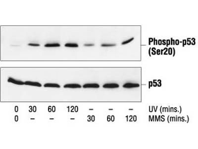 Phospho-p53 (Ser20) Antibody