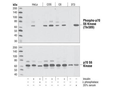 Great Antibody to Measure mTORC1 Signaling through S6K1 Activity