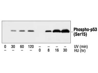 Time Course Effect of Chemoattractant on p53 Phosphorylation