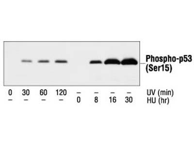Excellent Phospho p53 Antibody