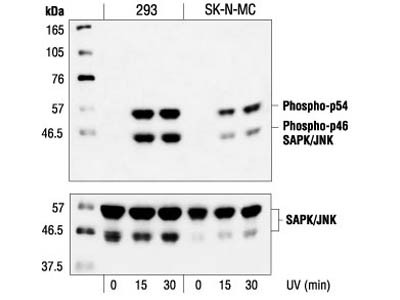 Expression of pJNK in Microglia Cells