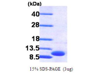CXCL3/GRO gamma, 35-107aa, Human, His-tag, Recombinant, E Coli