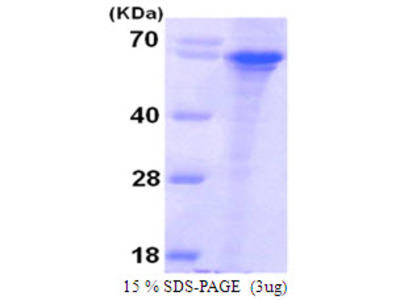 Syntaphilin, 1-424aa, Human, His tag, Recombinant, E Coli