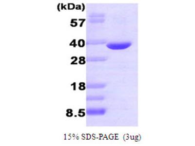 Aldose reductase, 1-316aa, Human, Recombinant, E Coli