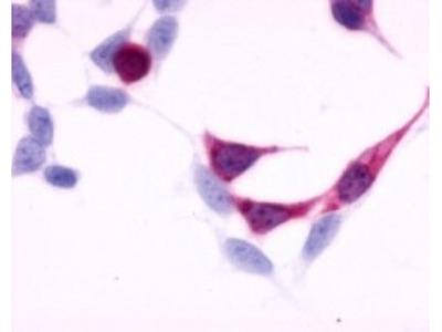 EDNRB / Endothelin R Type B Antibody