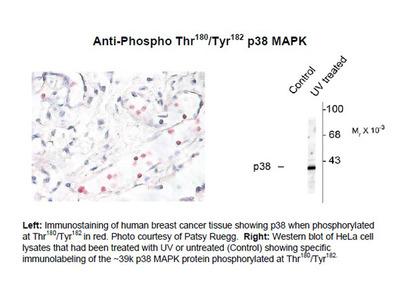 Anti-Phospho-Thr180/Tyr182 p38 MAPK