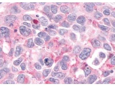 CCR9 Antibody