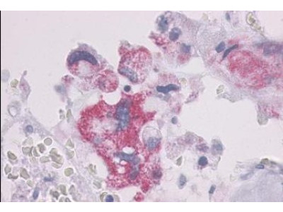 PTH1R/PTHR1 Antibody