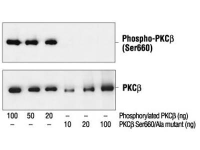 Phospho-PKC (pan) (βII Ser660) Antibody