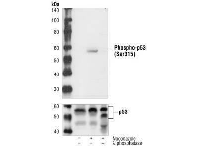 Phospho-p53 (Ser315) Antibody