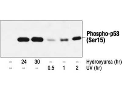 Phospho-p53 (Ser15) (16G8) Mouse mAb