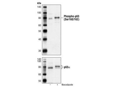 Phospho-p63 (Ser160/162) Antibody