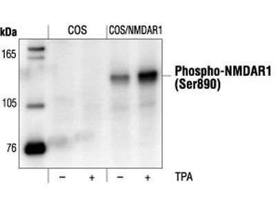 Phospho-NMDA Receptor 1 (GluN1) (Ser890) Antibody