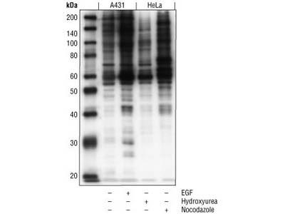 Phospho-MAPK/CDK Substrates (PXS*P or S*PXR/K) (34B2) Rabbit mAb