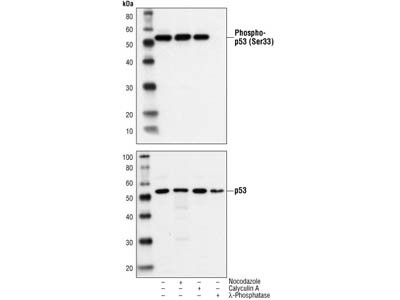 Phospho-p53 (Ser33) Antibody