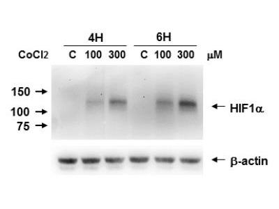 HIF-1 alpha Antibody (H1alpha67)