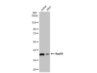 Mouse Monoclonal Rad51 Antibody