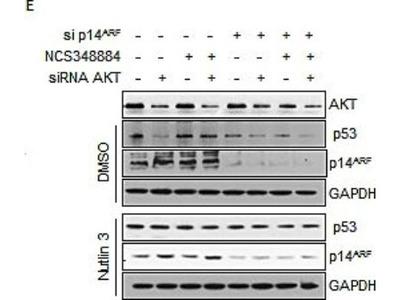p14ARF / CDKN2A Antibody