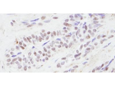Rabbit Polyclonal CBP / KAT3A Antibody