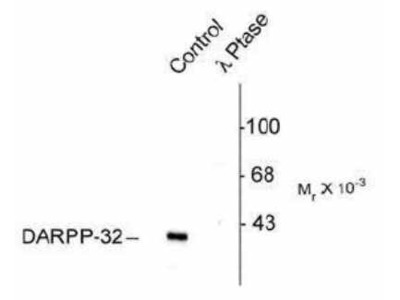 DARPP-32 [p Thr75] Antibody