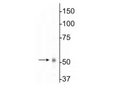 Rabbit Polyclonal GABA-A R beta 1 Antibody