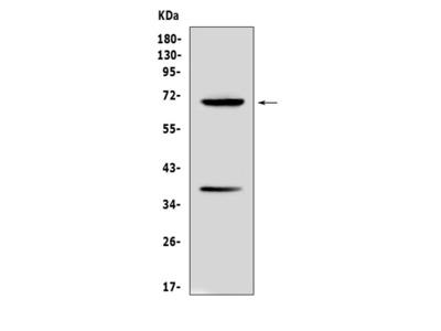 Anti-Alpha 1 Fetoprotein/Afp Picoband Antibody
