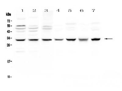 Anti-SDHB Picoband Antibody