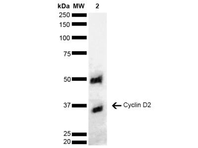 Cyclin D2 antibody