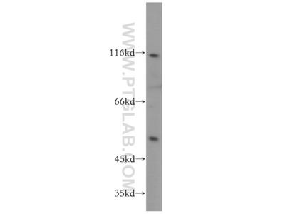 NFKB1,p105,p50-Specific antibody