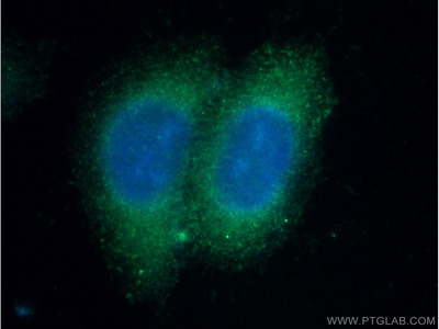 C4BPB Polyclonal Antibody