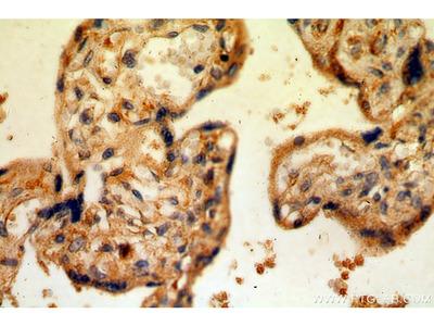 CSF2RA/CD116 antibody