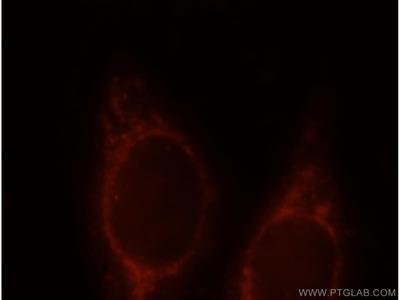 CHPF-N terminal Polyclonal Antibody