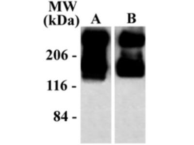 mGluR5 / 1 Antibody