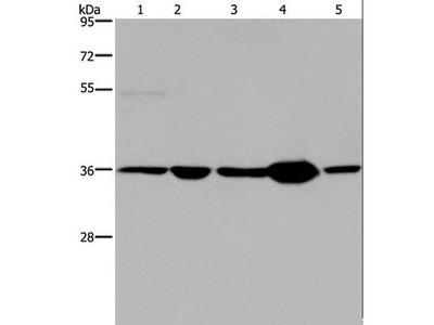 LZTFL1 Antibody