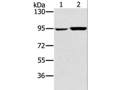 PYGL Antibody