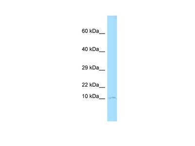CKS1 Polyclonal Antibody