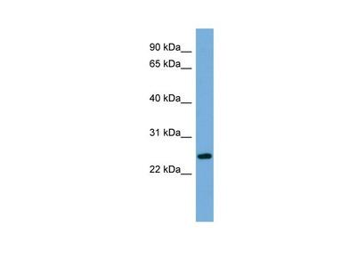 C6orf94 Polyclonal Antibody