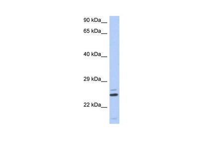 TTC9C Polyclonal Antibody