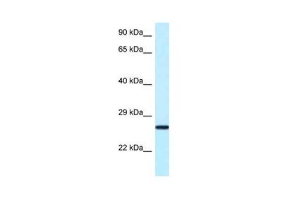 NUDT16 Polyclonal Antibody