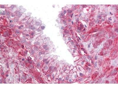 TMTC4 Antibody