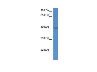 UCP4 Polyclonal Antibody