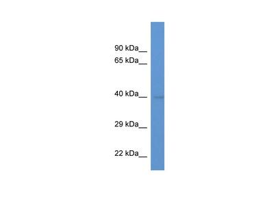 ENDOGL1 Polyclonal Antibody