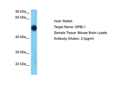 GPBP1L1 Polyclonal Antibody